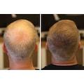 Fixplant 28Gr Saç Gürleştirici Saç Tozu Toppak Yapmaz!!!